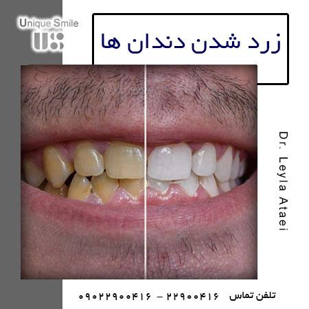 دندان زرد
