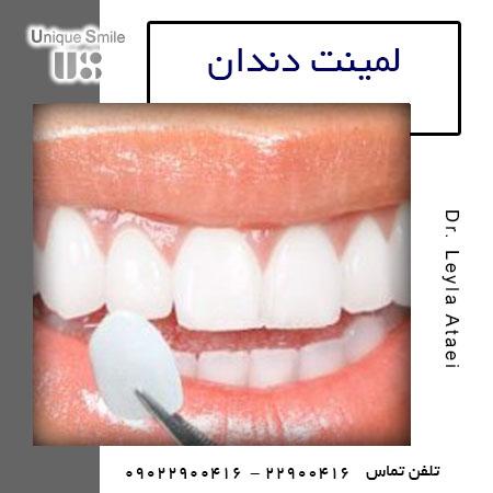 لیمنیت دندان