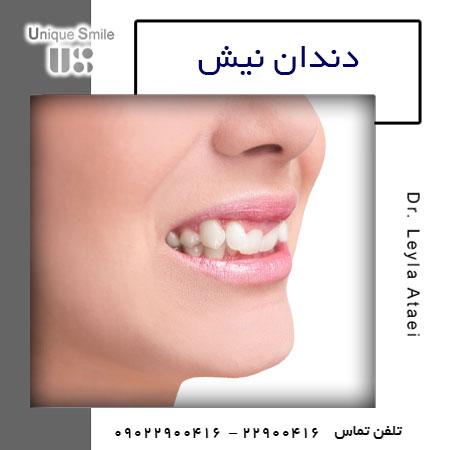 دندان نیش